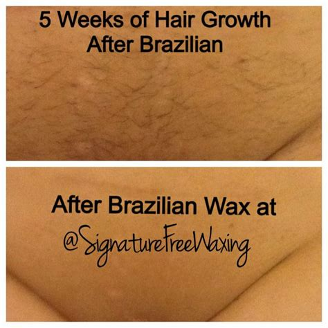 full brazilian wax photos before and after top photo this client has a condition called pcos which