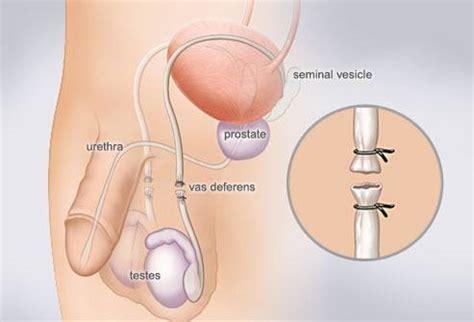 photos penes con liquido preseminal metodos anticonceptivos permanentes demedicina com