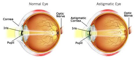 what is astigmatism? eye problems & advice common