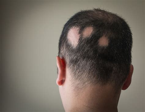 pattern baldness image what s the difference between alopecia and male pattern