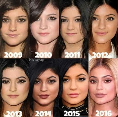 kylie jenner's face before & after surgery