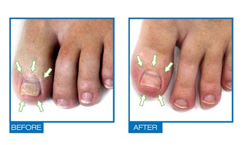 Date Interlude Physical Therapy For The Toe by Podiazole Toenail Fingernail Fungus Treatment Nail