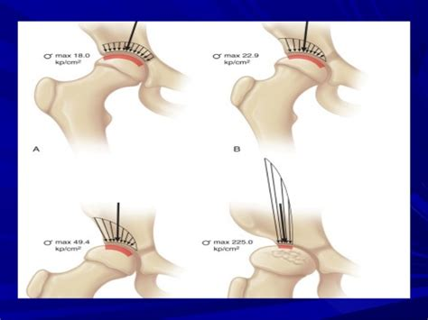 Shelf Procedure by Osteotomies Around The Hip Joint