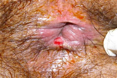 Anal fissure   pics