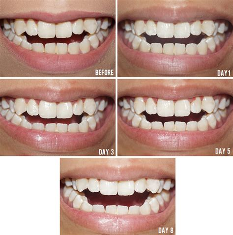 professional teeth whitening opalescense  review