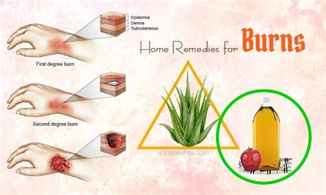 30 best home remedies for burns on fingers