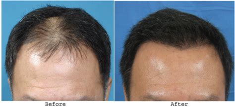 new hair transplant top 10 hair transplant centers in bangalore styles at life