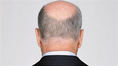 percentage of men balding hats off to these 4 potential baldness cures abc news