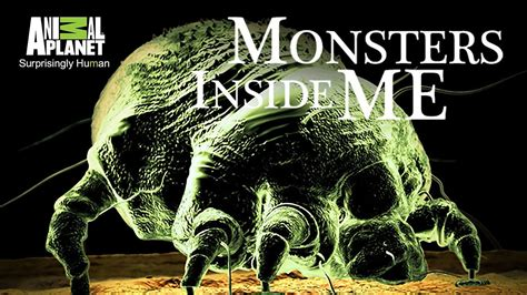 Monsters Inside Me Sleeper Cells by Monsters Inside Me Tv Show 2009