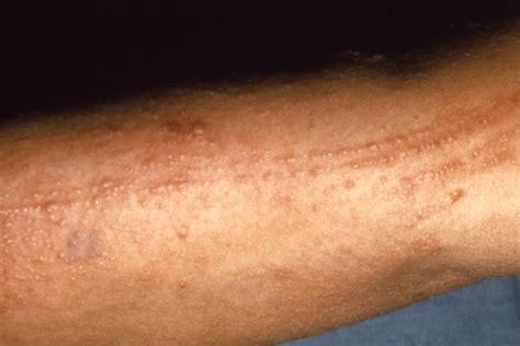 poison ivy oak sumac rash causes symptoms treatment poison ivy oak sumac rash