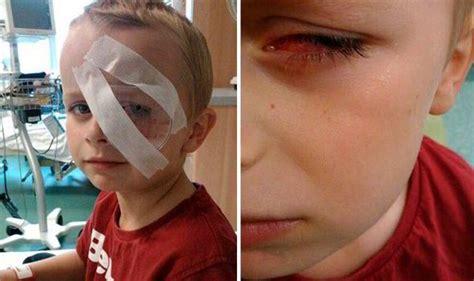 Loom band: Boy, 7, left with permanent eye damage after freak accident   UK   News   Express.co.uk