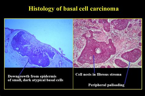 Histologic Pattern Analysis Of Basal Cell Carcinoma | histologic pattern analysis of basal cell carcinoma