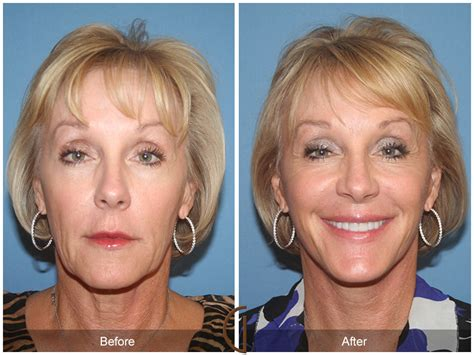 Is A Mini Lift A Facelift Alternative by Before After Facelift 35 Newport Plastic