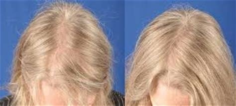 female pattern hair loss uk female pattern hair loss hair loss clinic in glasgow