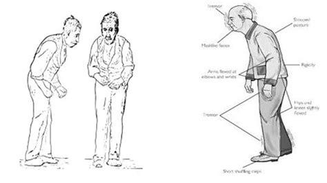 tremore interno cause malattia di parkinson