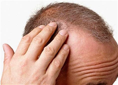 bruciori alla testa tricodinia dolore al cuoio capelluto o alla dei capelli