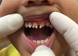 Sugary Drinks Are Causing The Teeth Of Australian Toddlers a national disgrace how our addiction to sugary drinks is