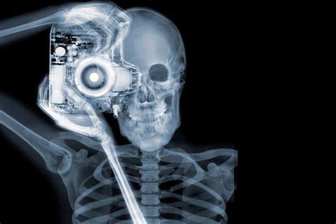 imagenes animadas rayos x adictamente impresionantes fotos tomadas con rayos x