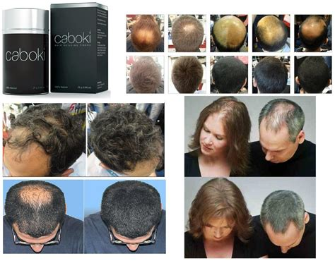 100 natural cover bald head by caboki hair fibers hyderabad caboki hair building fiber 25g usa hair loss concealer