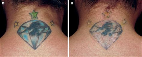 tattoo removal in delhi 100 chronicles of a removal chronicles of a