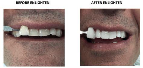 enlighten teeth whitening london experts liverpool st