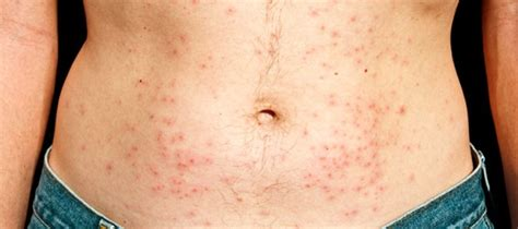 Rash From Shower Water by Chlorine Rash Pictures Causes And Treatments