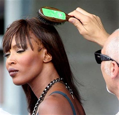 story of naomi campbell's hair loss: traction alopecia in