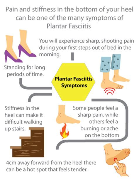 Planters Fasciitis Symptoms by Planters Facetious Remedies