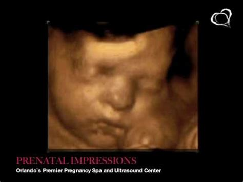 3d 4d Ultrasound Pictures 32 Weeks