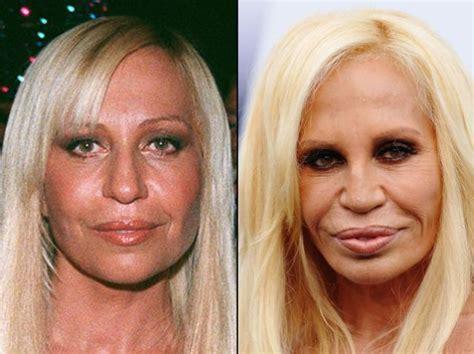 Designer Cosmetic Surgery Craze by Famosos Antes E Depois Cirurgia 17 40 Forever