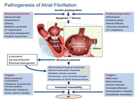 atrial fibrillation diagram atrial fibrillation pathophysiology diagram 28 images
