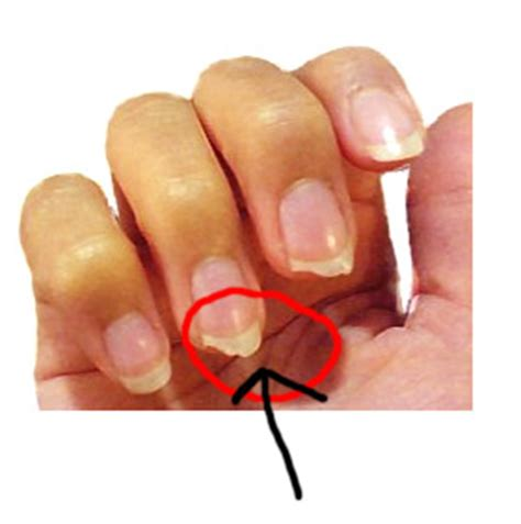 7 Remedies For Fragile Fingernails by How To Treat Brittle Nails Naturally Giirvani