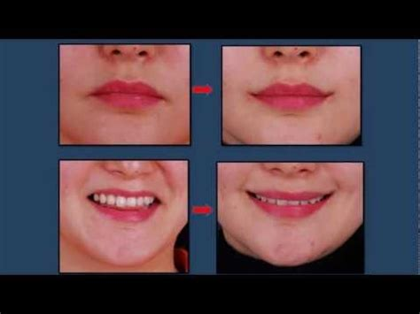 perms after surgery perma smiles south korean mouth corner surgery plus 4