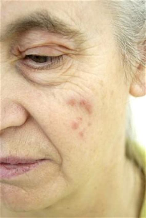 lupus rash lovetoknow