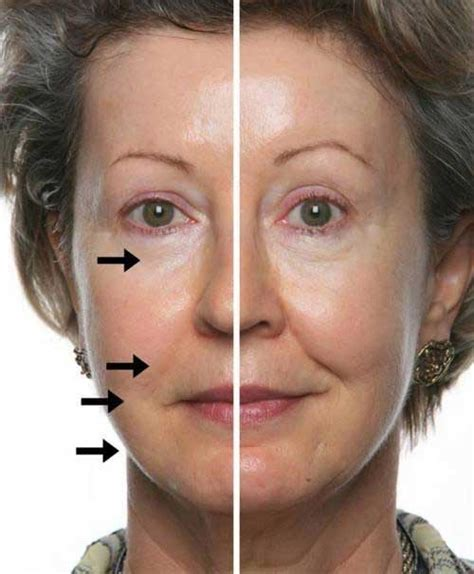 fine lines the 4 dreaded signs of aging and how to combat them