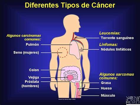 el significado de los nacidos en cancer c 225 ncer en ni 241 os y adolescentes