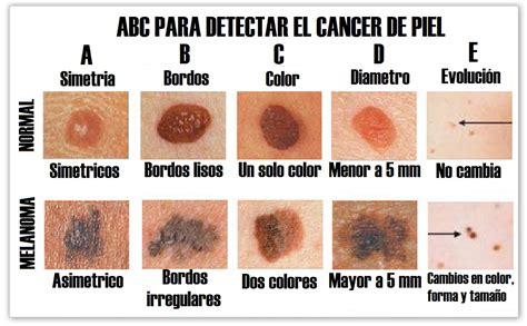 melanoma color c 225 ncer de piel tipos m 225 s comunes y factores de riesgo