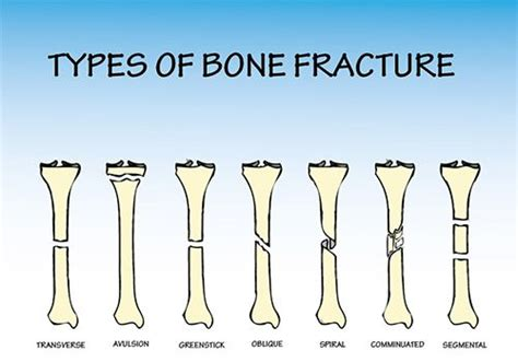 to the bone threatening illness and the search for meaning books types and causes of bone fractures different types