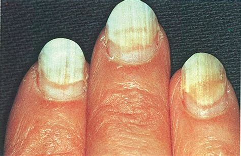nail separated from nail bed when nails separate health nails magazine