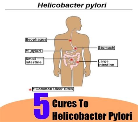 5 cures for helicobacter pylori how to cure