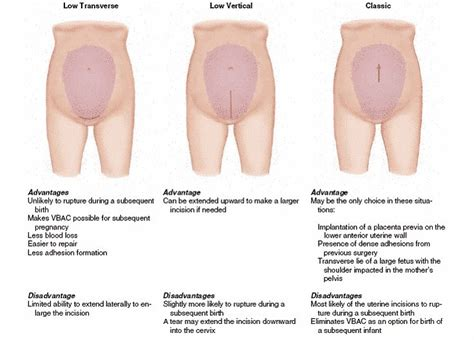 second c section incision 14 best images about c sections on pinterest different