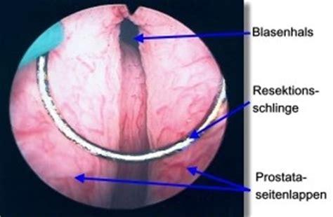 tur prostata turp transurethrale resektion der prostata ablauf und