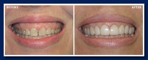preparation veneers vancouver dentist