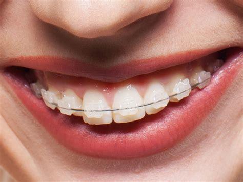 apparecchio interno costo ortodonzia filosofia