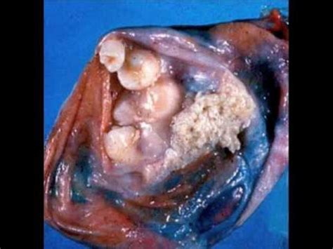 tumor with hair and teeth images sorry you asked w dr josh bazell ep 5 quot teratoma