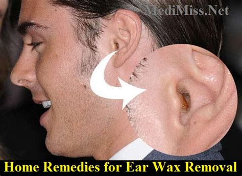 home remedies for ear wax removal medimiss