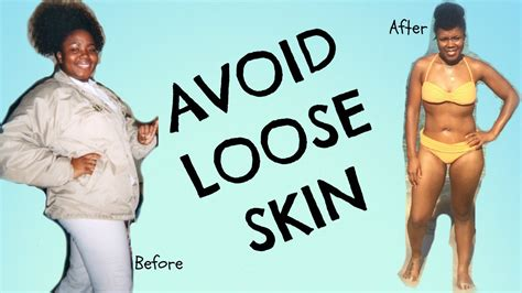 Out With The Excess Weight by Avoid Skin During And After Weight Loss Tips For