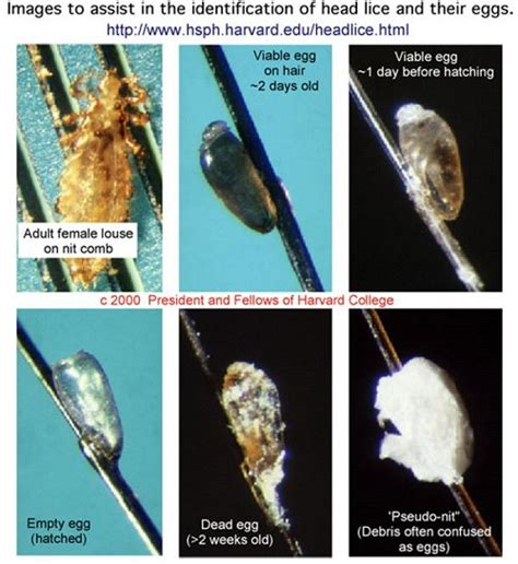 what color are dead lice eggs school lice pediculosis information