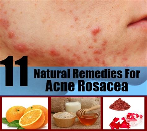 11 remedies for acne rosacea best