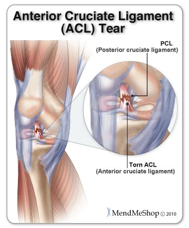 cruciate ligament tear mendmyknee all about the anterior cruciate ligament acl